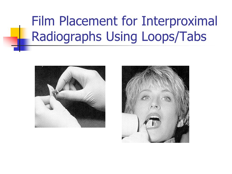 Film Placement for Interproximal Radiographs Using Loops/Tabs