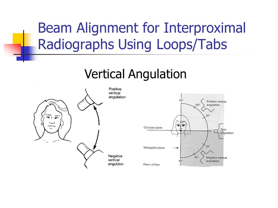 Beam Alignment for Interproximal Radiographs Using Loops/Tabs