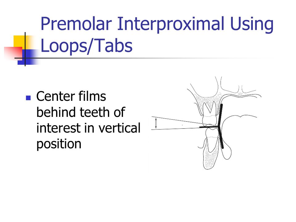 Premolar Interproximal Using Loops/Tabs