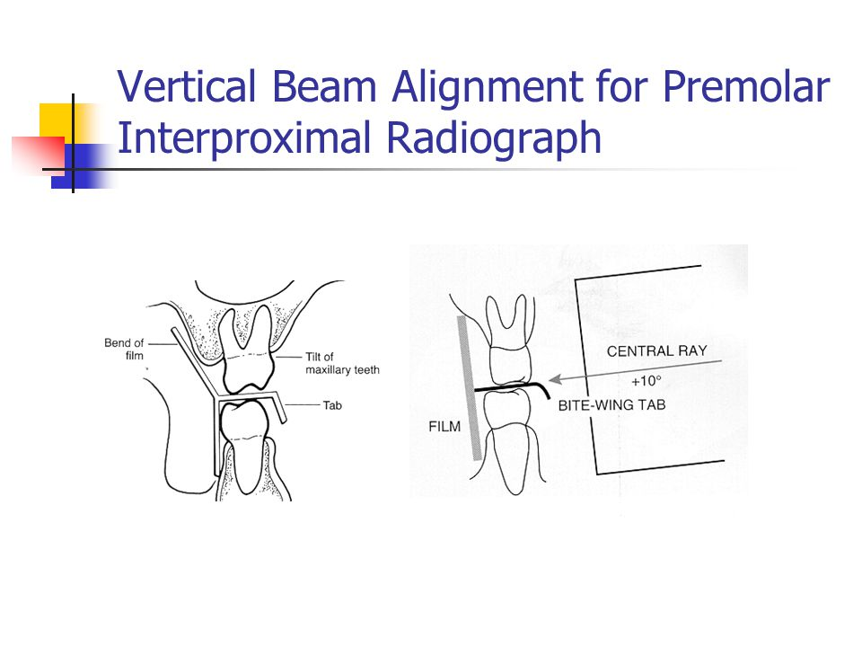 Vertical Beam Alignment for Premolar Interproximal Radiograph