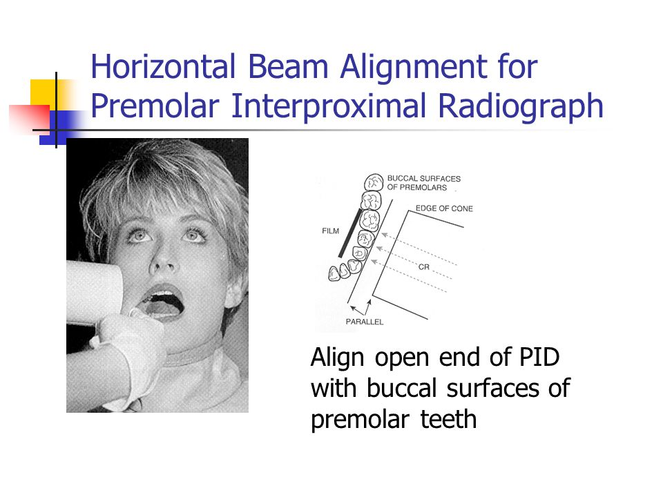 Horizontal Beam Alignment for Premolar Interproximal Radiograph