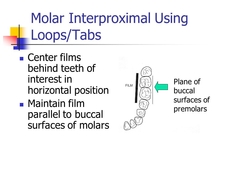 Molar Interproximal Using Loops/Tabs