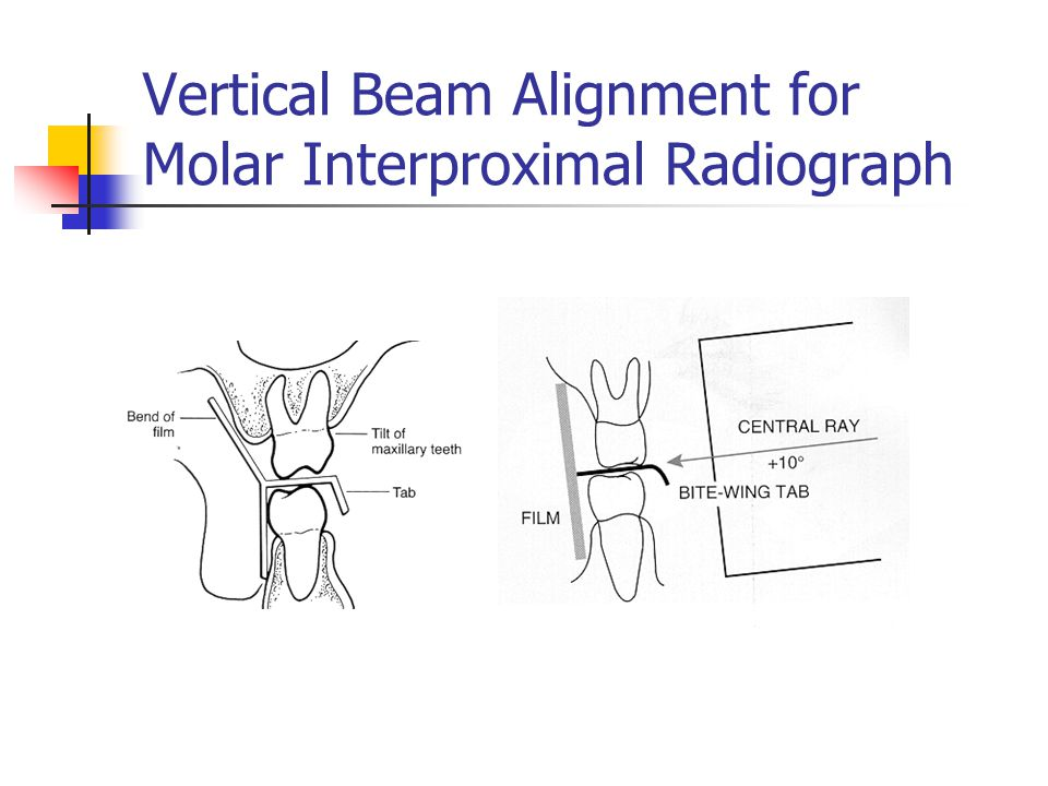 Vertical Beam Alignment for Molar Interproximal Radiograph