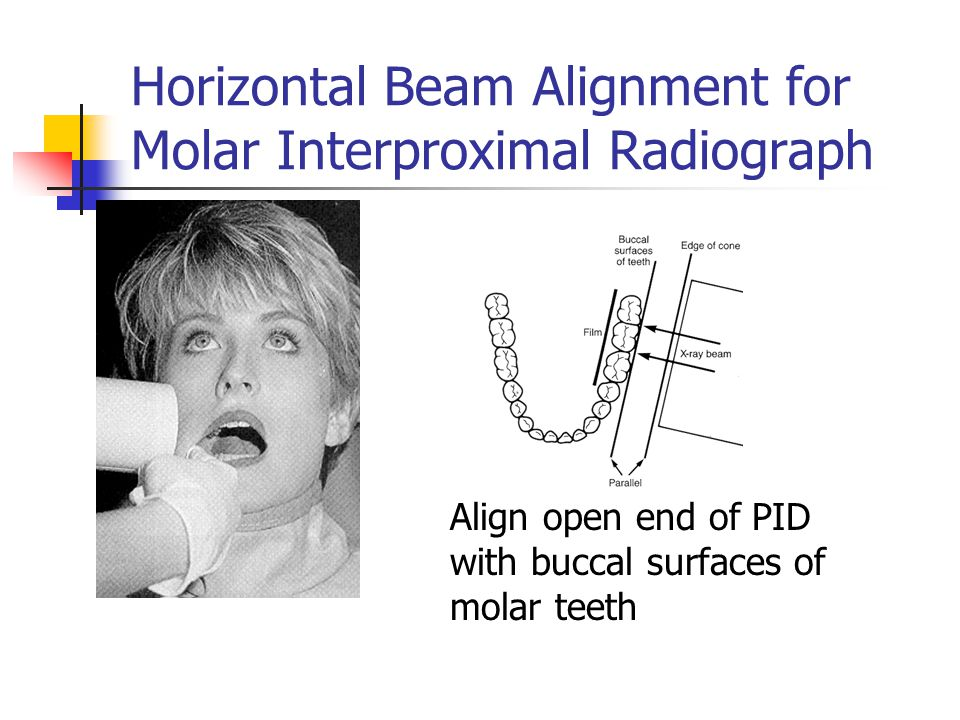 Horizontal Beam Alignment for Molar Interproximal Radiograph