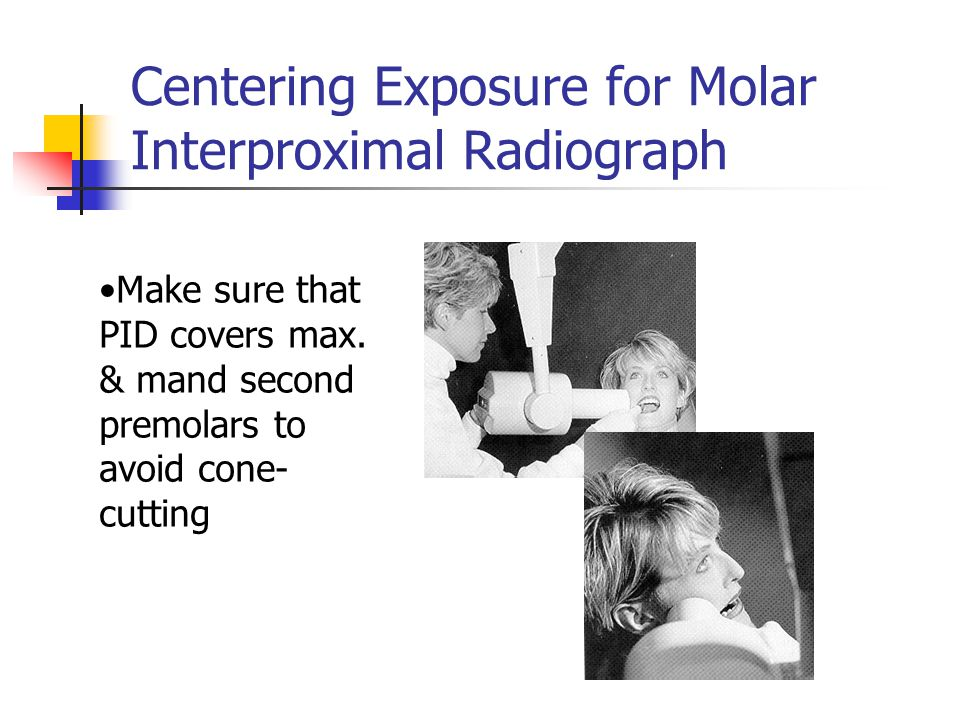 Centering Exposure for Molar Interproximal Radiograph