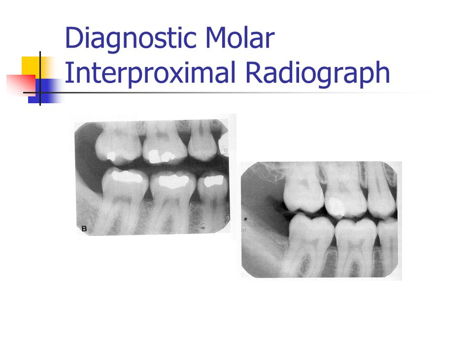 Diagnostic Molar Interproximal Radiograph