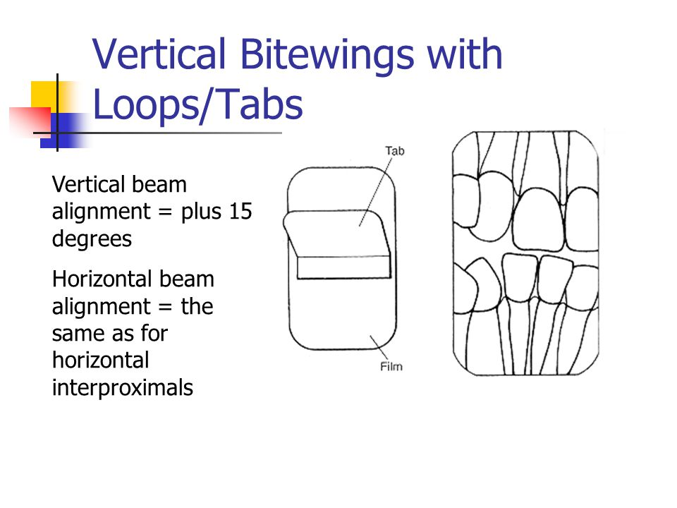 Vertical Bitewings with Loops/Tabs