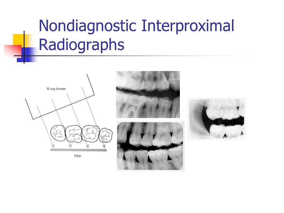 Nondiagnostic Interproximal Radiographs