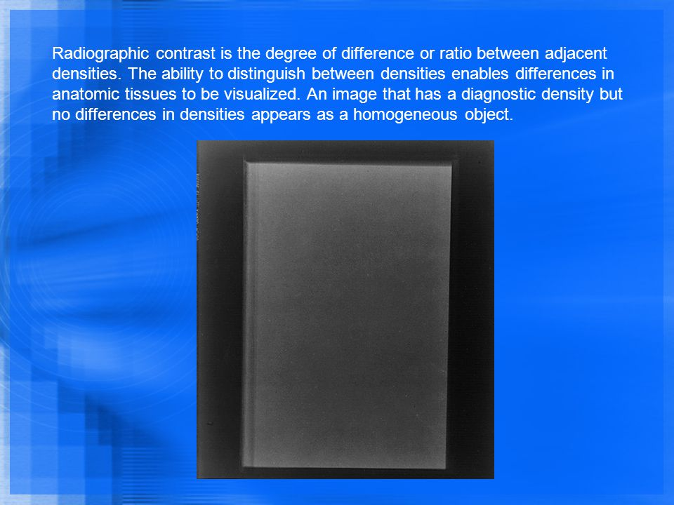 Radiographic contrast is the degree of difference or ratio between adjacent densities.