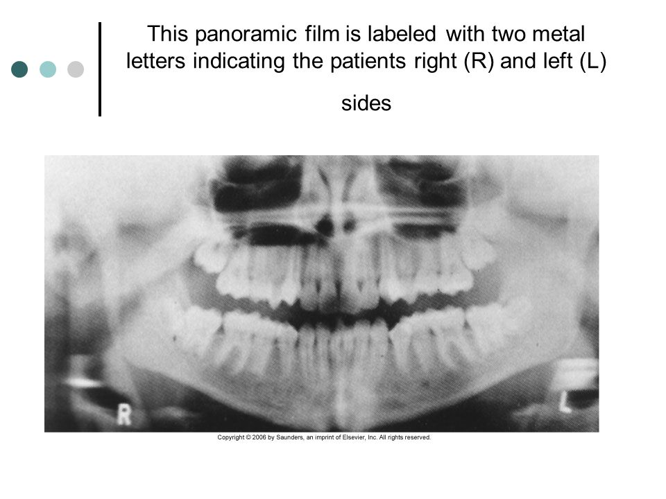 This panoramic film is labeled with two metal letters indicating the patients right (R) and left (L) sides
