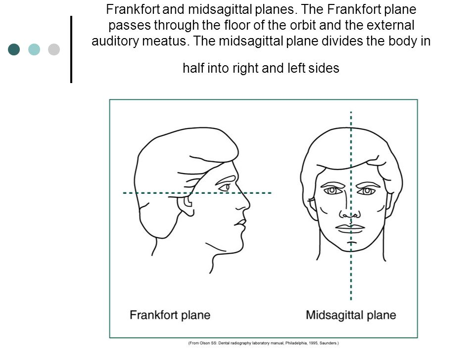 Frankfort and midsagittal planes