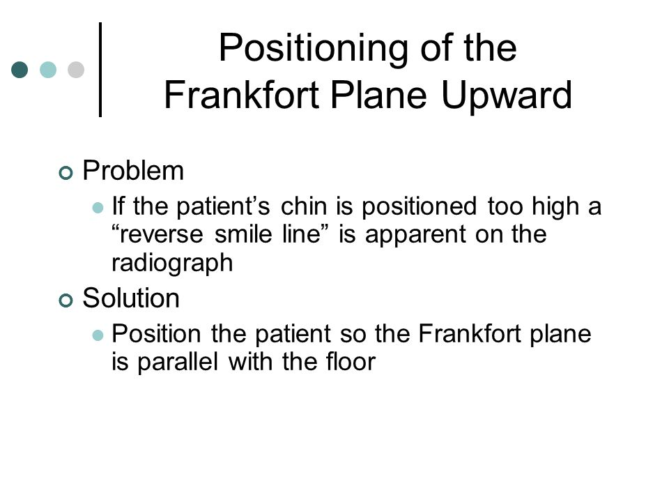 Positioning of the Frankfort Plane Upward