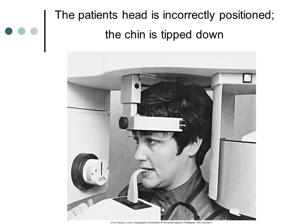 The patients head is incorrectly positioned; the chin is tipped down