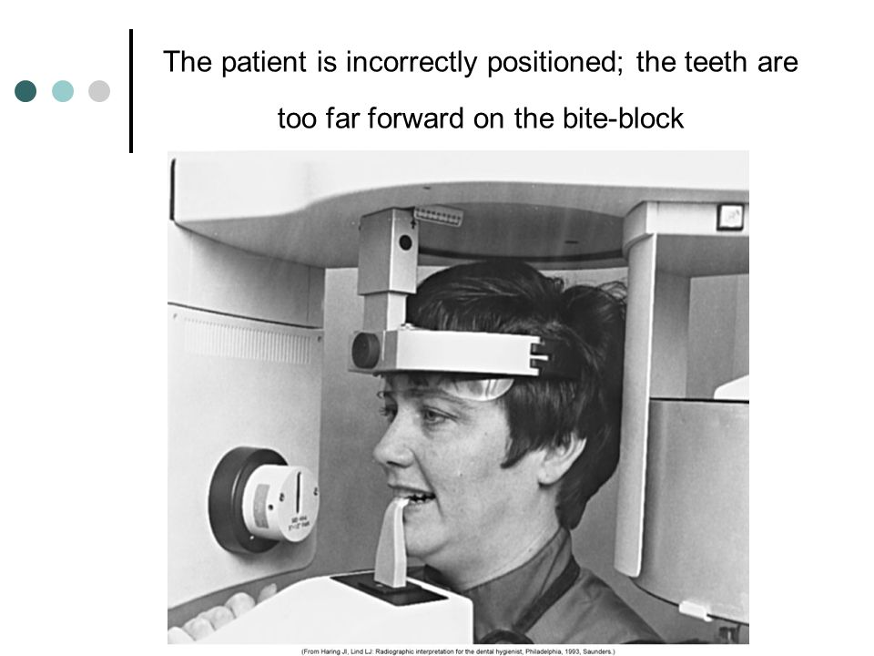 The patient is incorrectly positioned; the teeth are too far forward on the bite-block