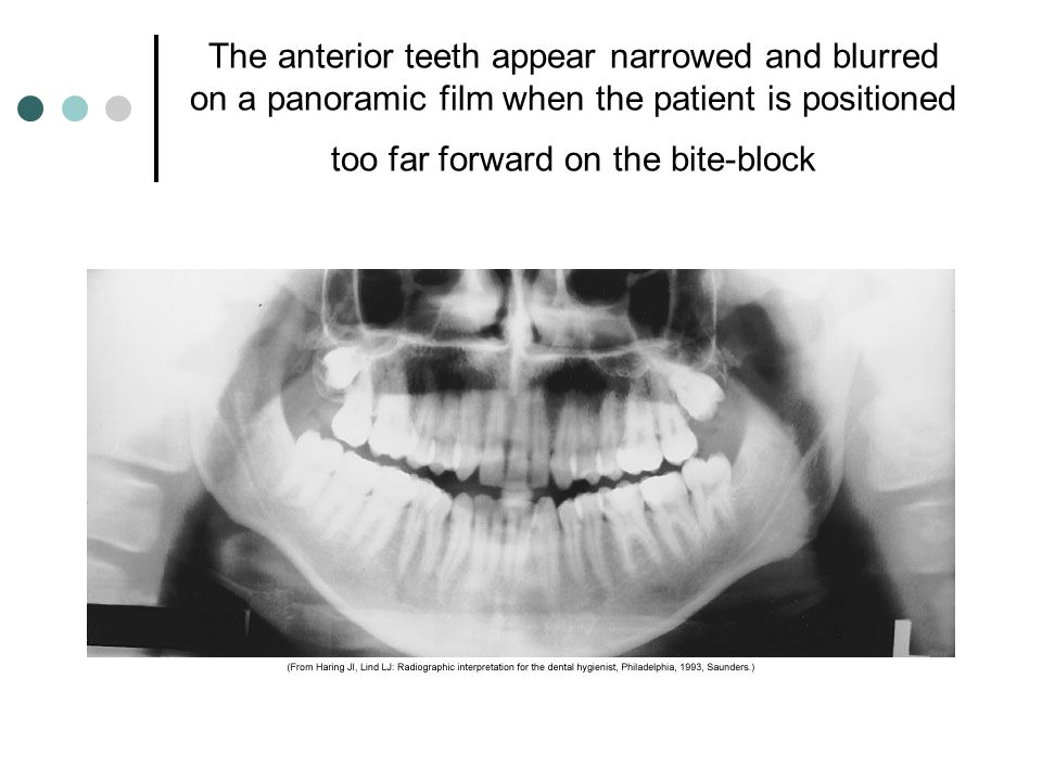 The anterior teeth appear narrowed and blurred on a panoramic film when the patient is positioned too far forward on the bite-block