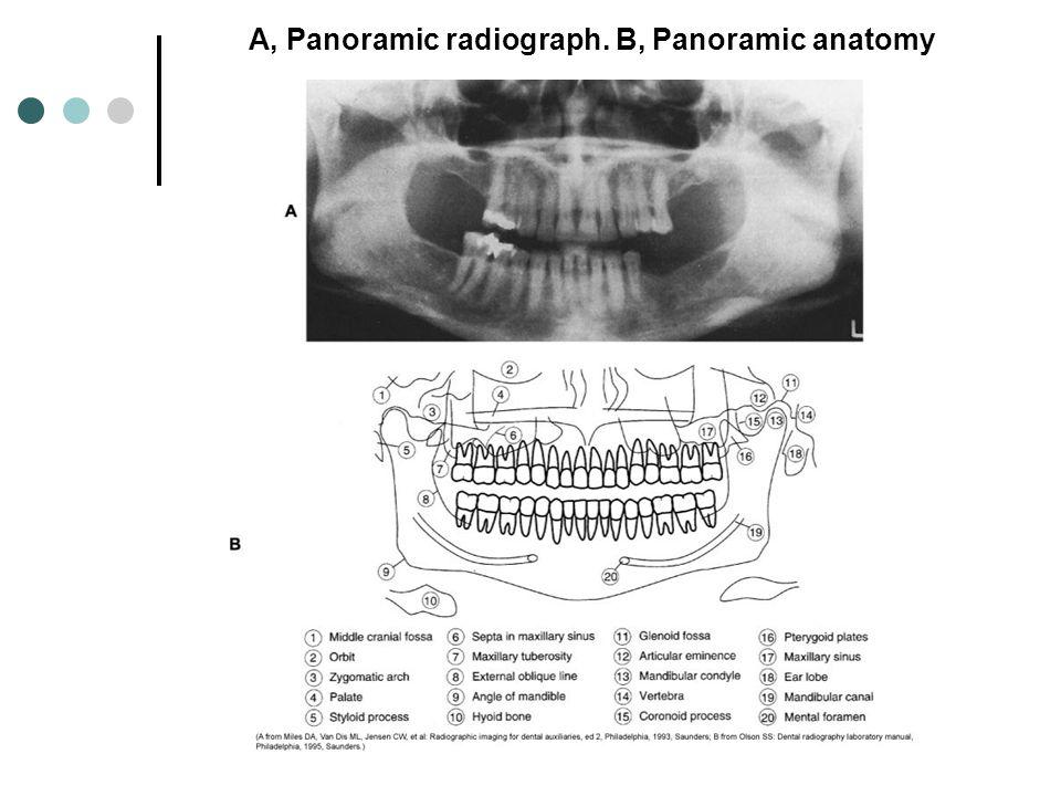A, Panoramic radiograph. B, Panoramic anatomy