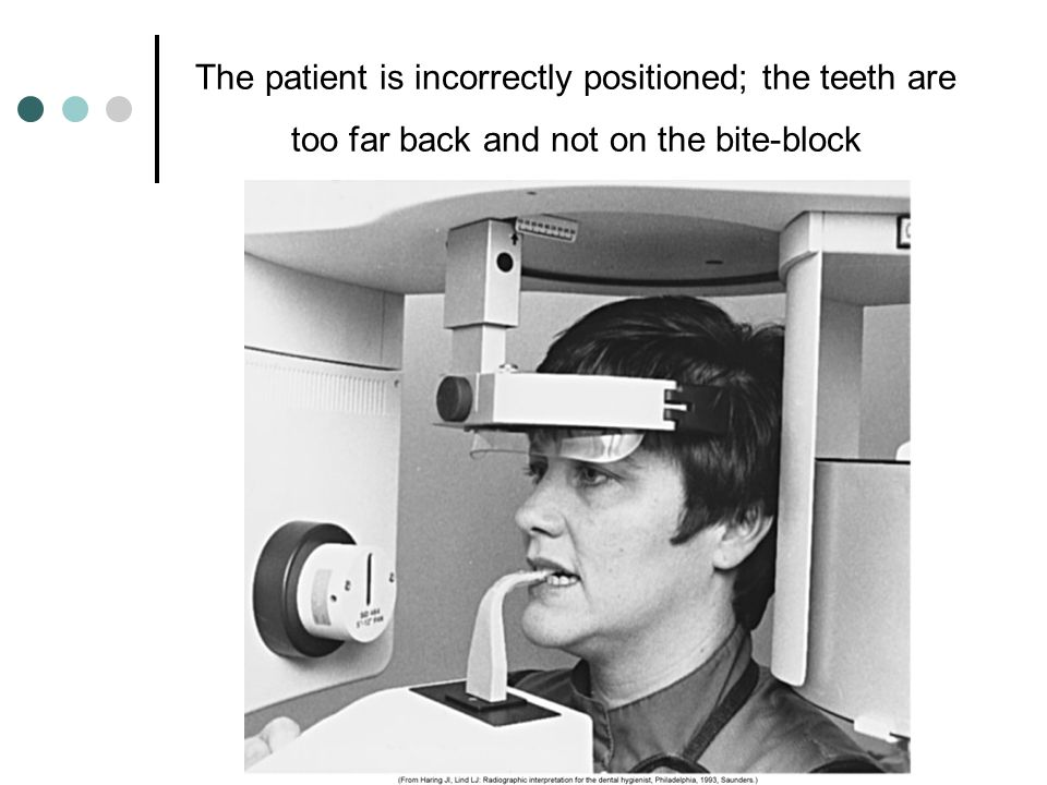 The patient is incorrectly positioned; the teeth are too far back and not on the bite-block