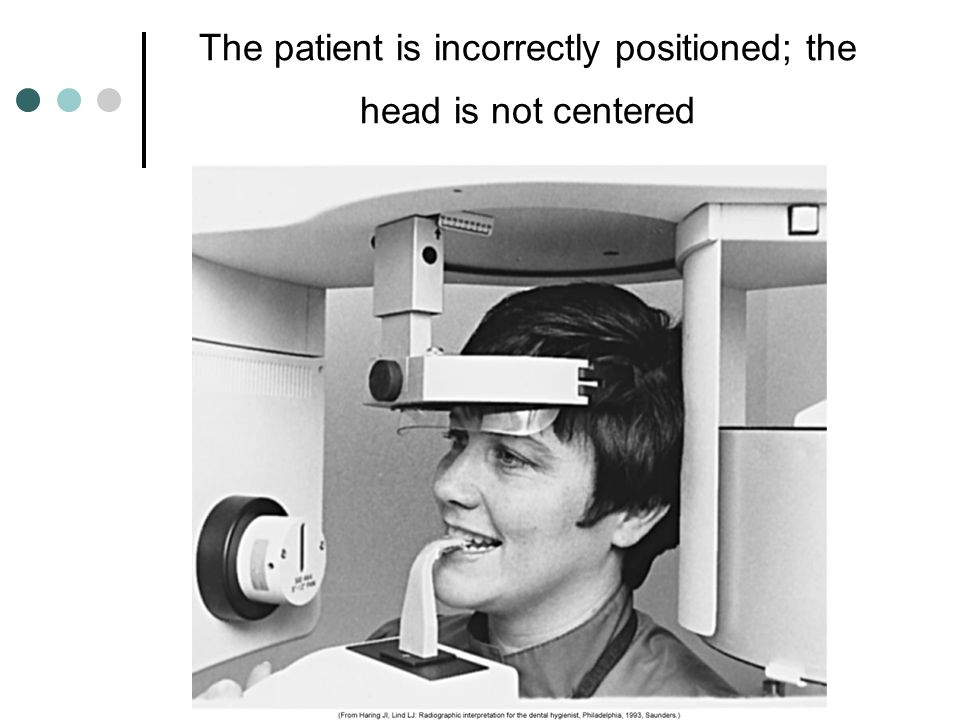 The patient is incorrectly positioned; the head is not centered