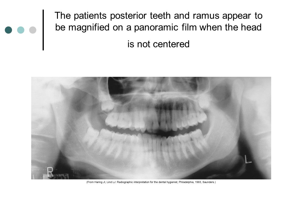 The patients posterior teeth and ramus appear to be magnified on a panoramic film when the head is not centered