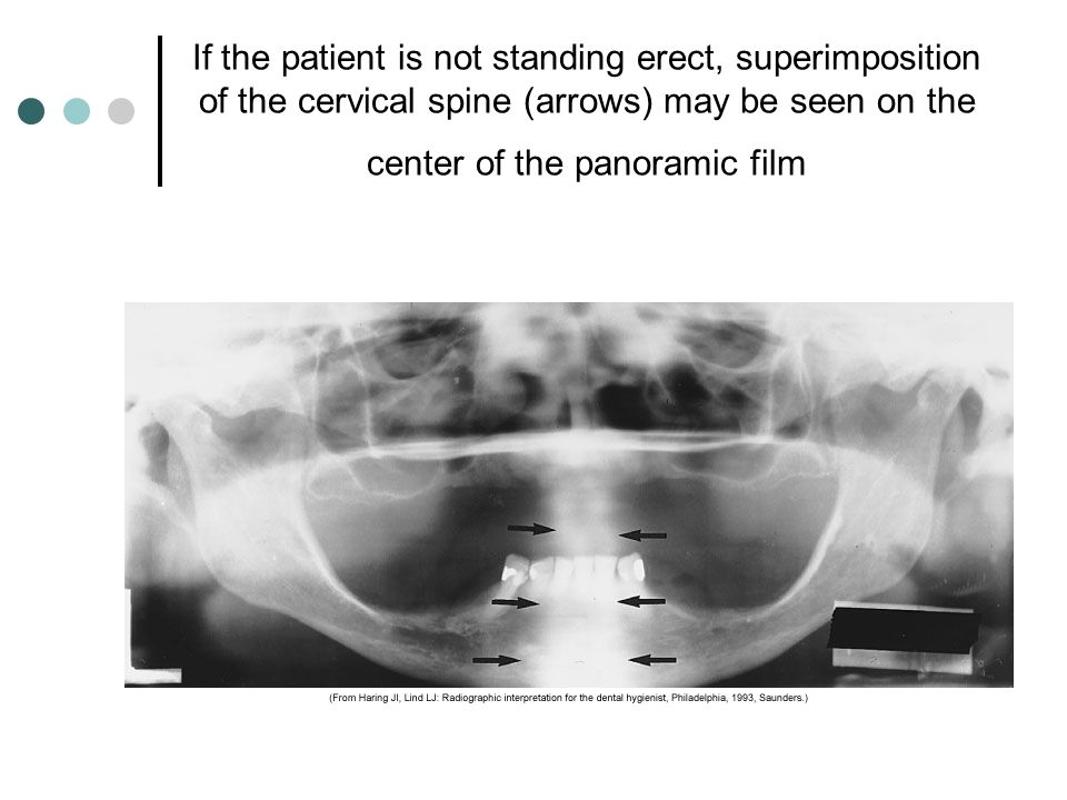 If the patient is not standing erect, superimposition of the cervical spine (arrows) may be seen on the center of the panoramic film