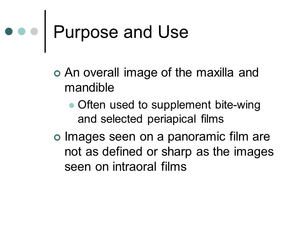 Purpose and Use An overall image of the maxilla and mandible