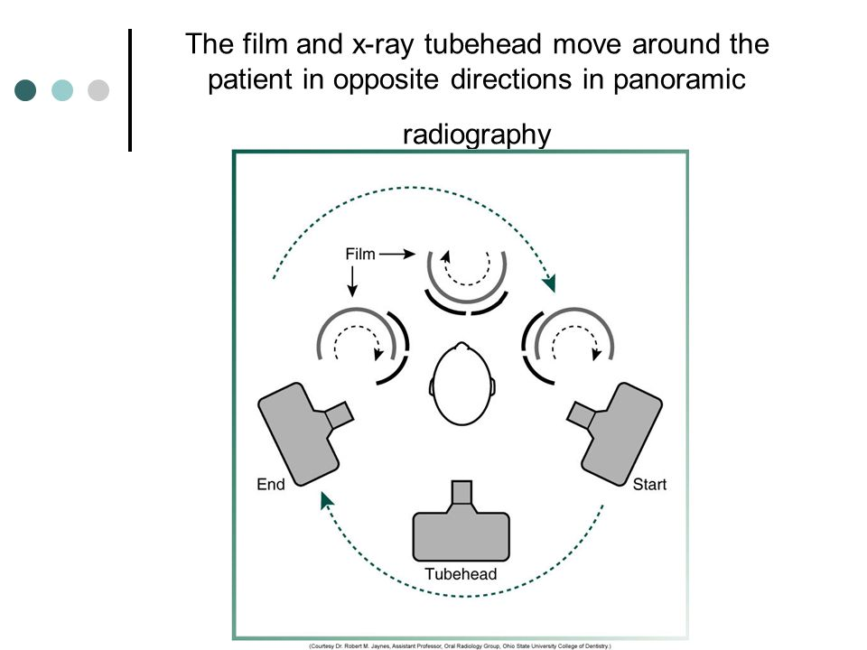 The film and x-ray tubehead move around the patient in opposite directions in panoramic radiography