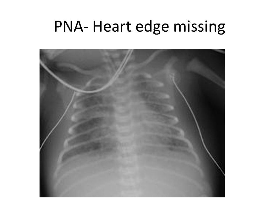 PNA- Heart edge missing