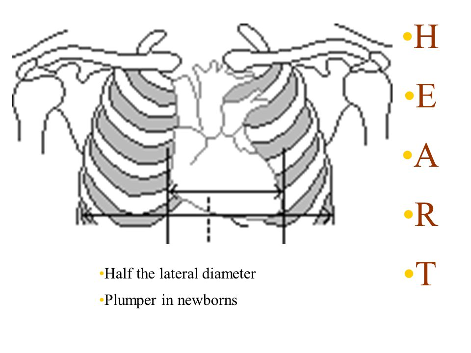 H E A R T Half the lateral diameter Plumper in newborns