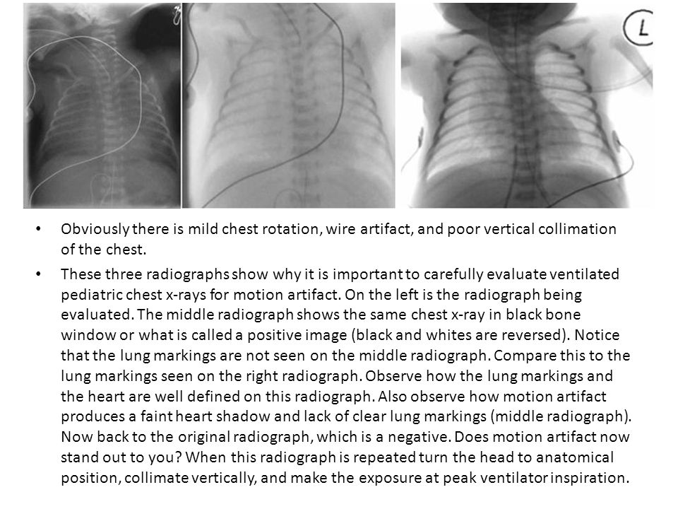 Obviously there is mild chest rotation, wire artifact, and poor vertical collimation of the chest.