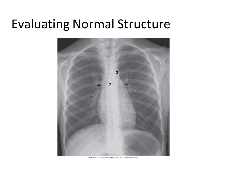 Evaluating Normal Structure