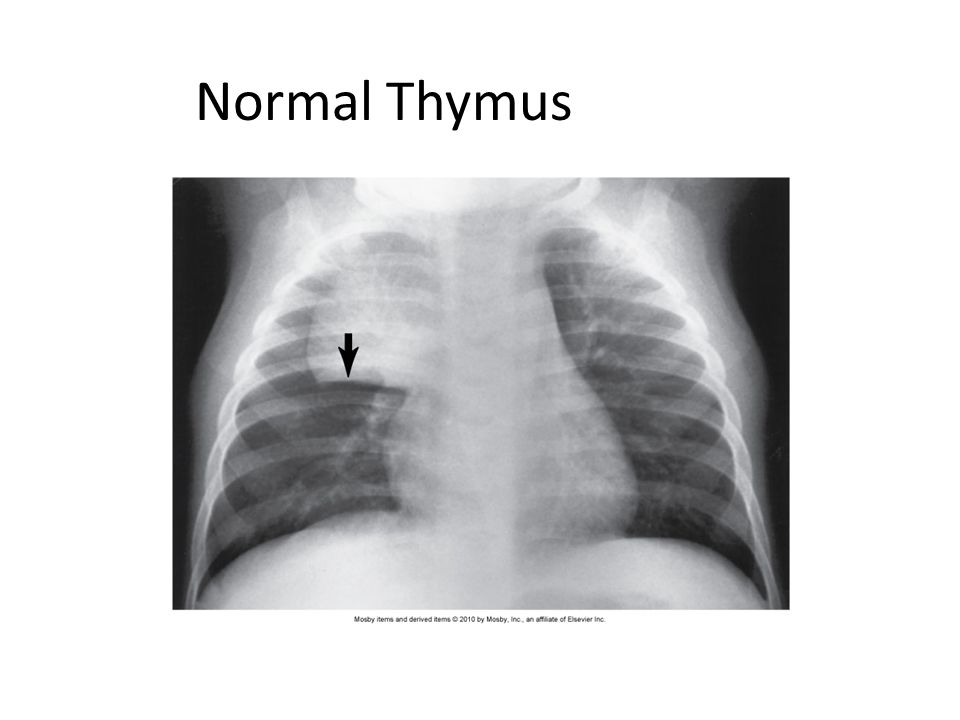 Normal Thymus
