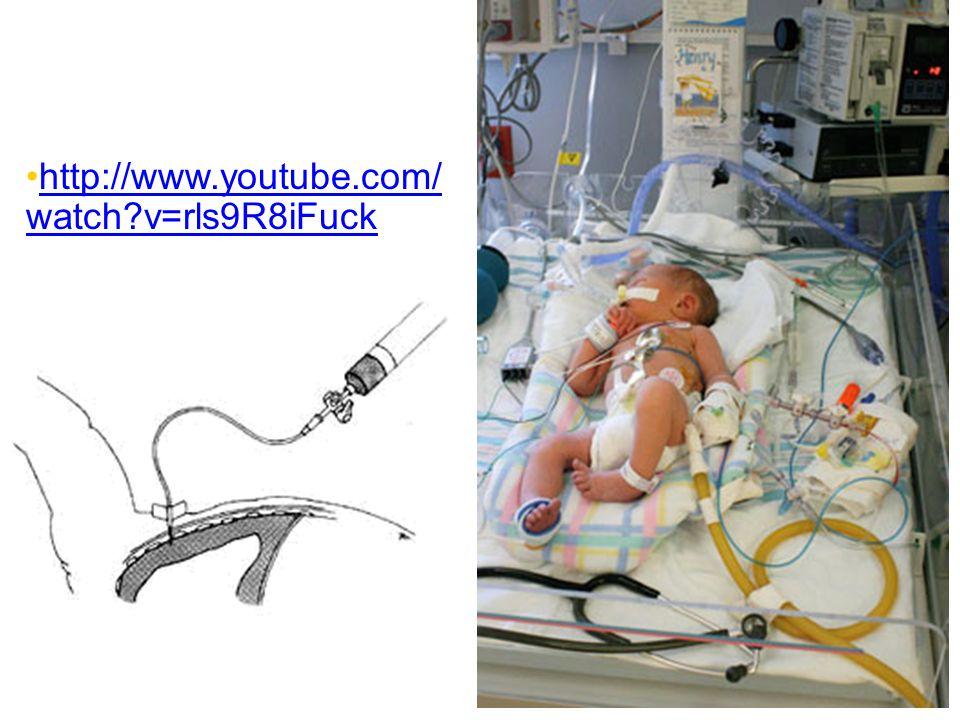 http://www.youtube.com/watch v=rls9R8iFuck