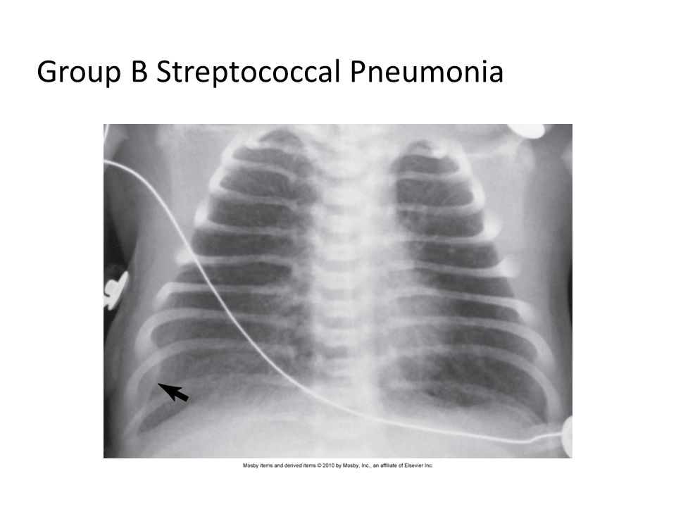 Group B Streptococcal Pneumonia