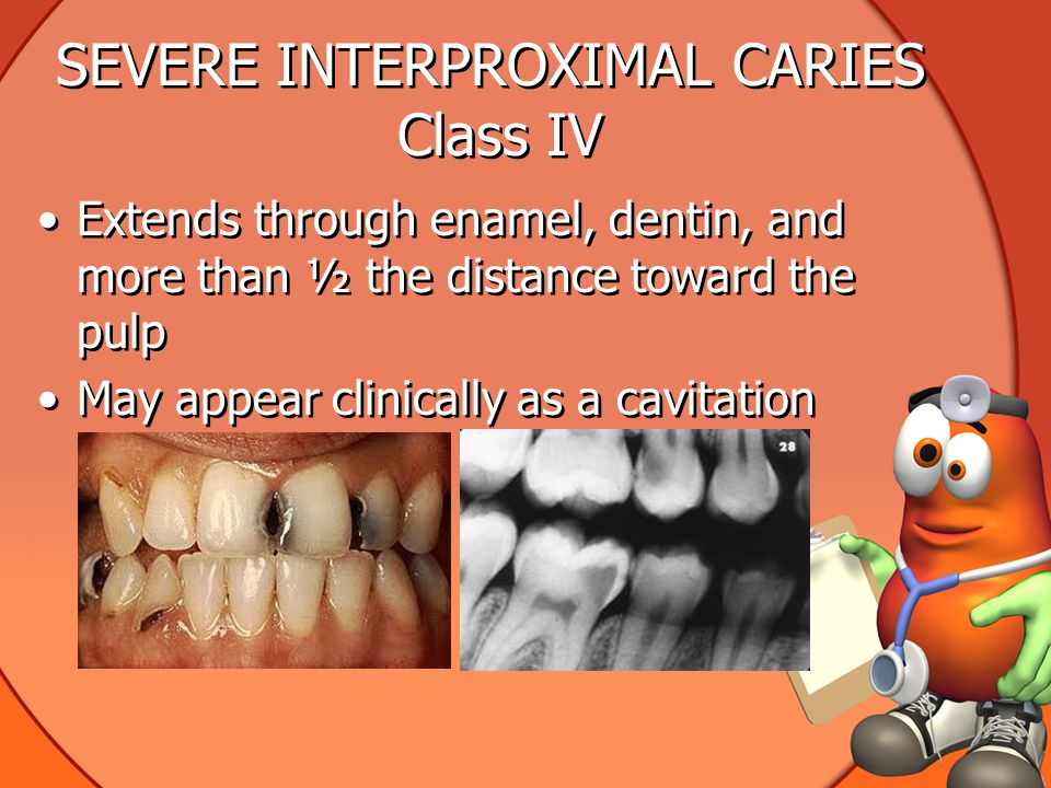 SEVERE INTERPROXIMAL CARIES Class IV