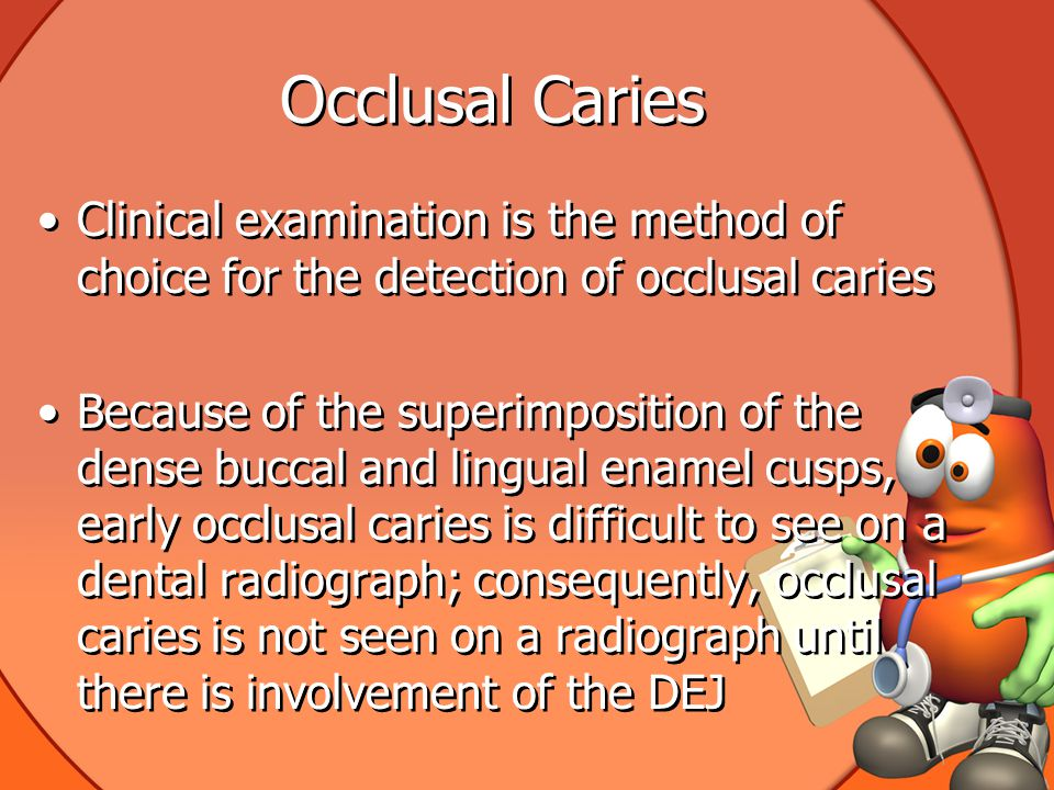 Occlusal Caries Clinical examination is the method of choice for the detection of occlusal caries.