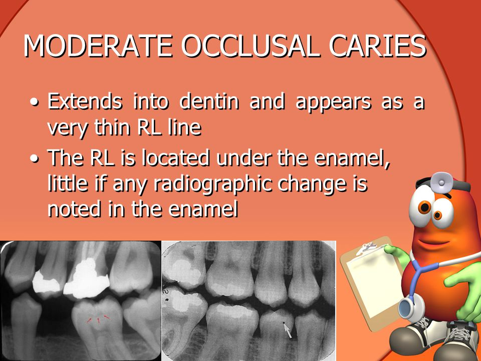 MODERATE OCCLUSAL CARIES