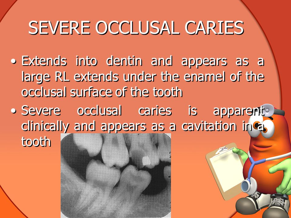 SEVERE OCCLUSAL CARIES