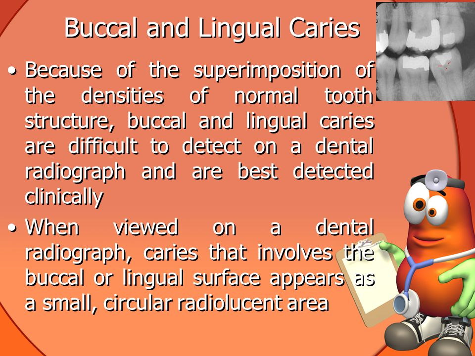 Buccal and Lingual Caries