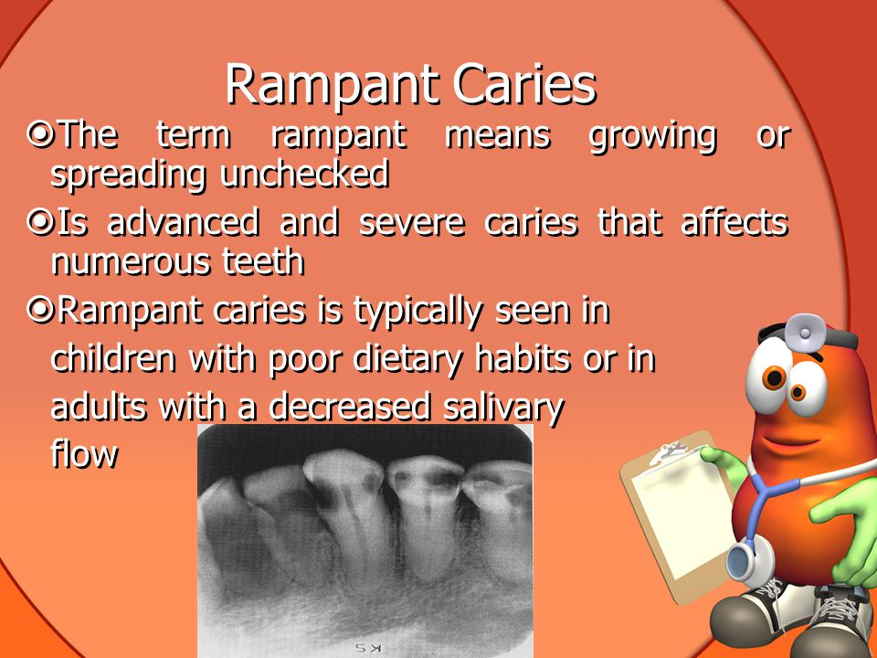 Rampant Caries The term rampant means growing or spreading unchecked