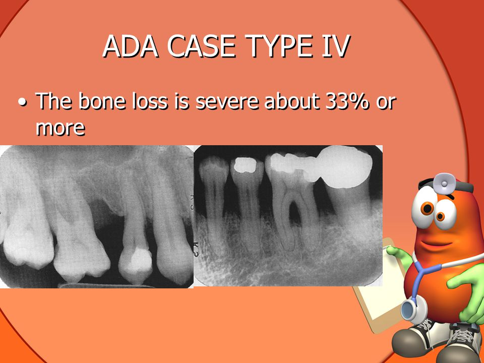 ADA CASE TYPE IV The bone loss is severe about 33% or more