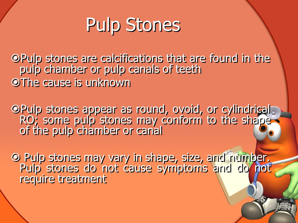 Pulp Stones Pulp stones are calcifications that are found in the pulp chamber or pulp canals of teeth.