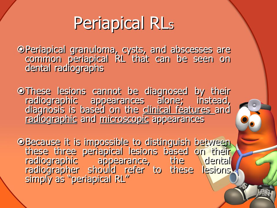 Periapical RLS Periapical granuloma, cysts, and abscesses are common periapical RL that can be seen on dental radiographs.