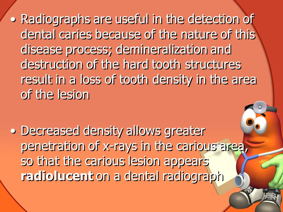 Radiographs are useful in the detection of dental caries because of the nature of this disease process; demineralization and destruction of the hard tooth structures result in a loss of tooth density in the area of the lesion