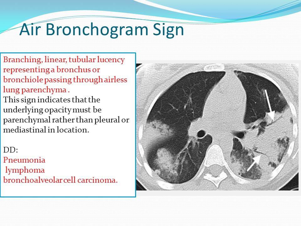 Air Bronchogram Sign Branching, linear, tubular lucency representing a bronchus or bronchiole passing through airless lung parenchyma .
