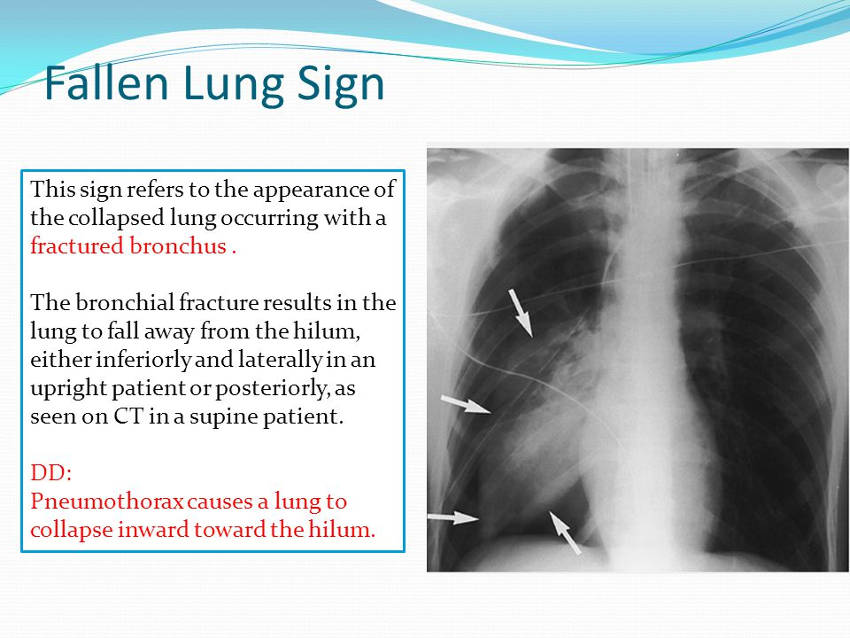 Fallen Lung Sign This sign refers to the appearance of the collapsed lung occurring with a fractured bronchus .