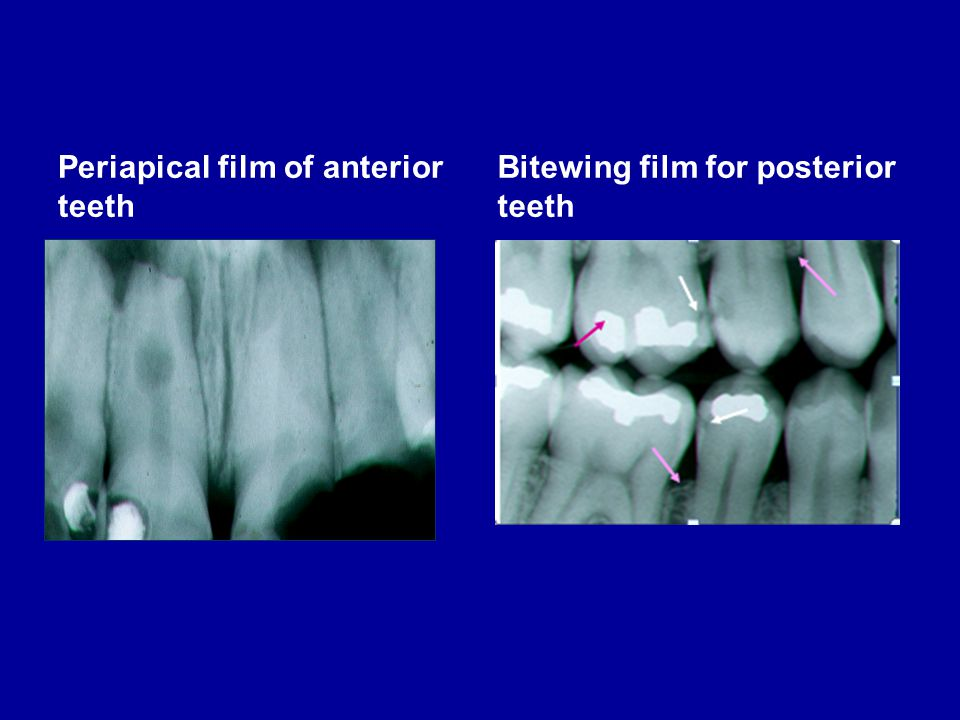 Periapical film of anterior teeth