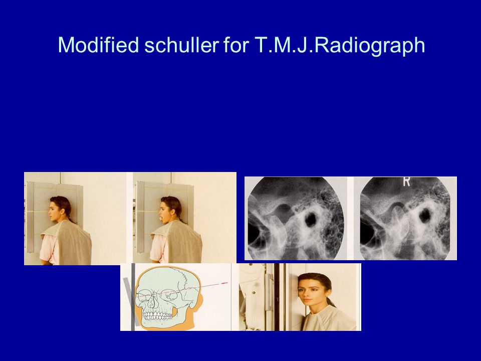 Modified schuller for T.M.J.Radiograph