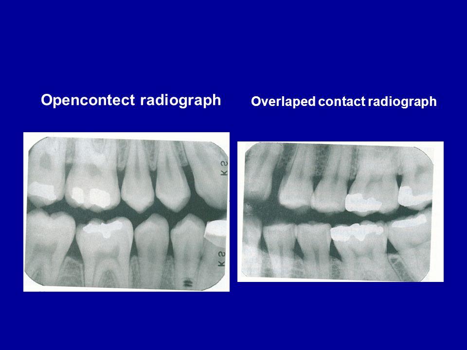 Opencontect radiograph