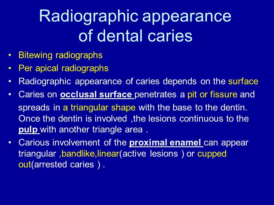 Radiographic appearance of dental caries