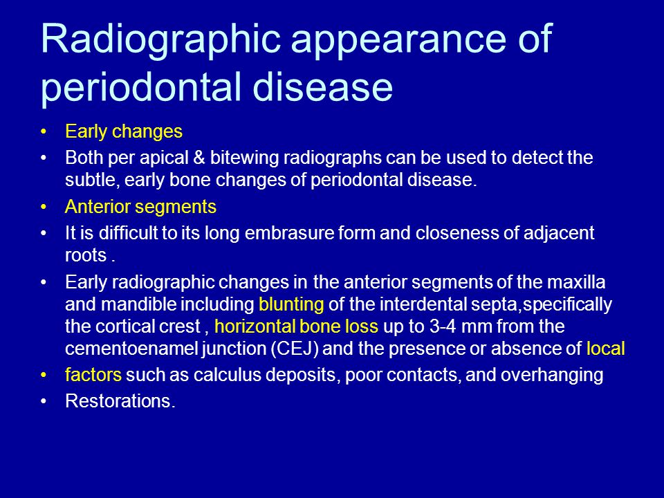 Radiographic appearance of periodontal disease